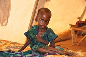 Starving-Child-In-Ethiopia-Photo-by-Cate-Turton-Department-for-International-Development-300x199