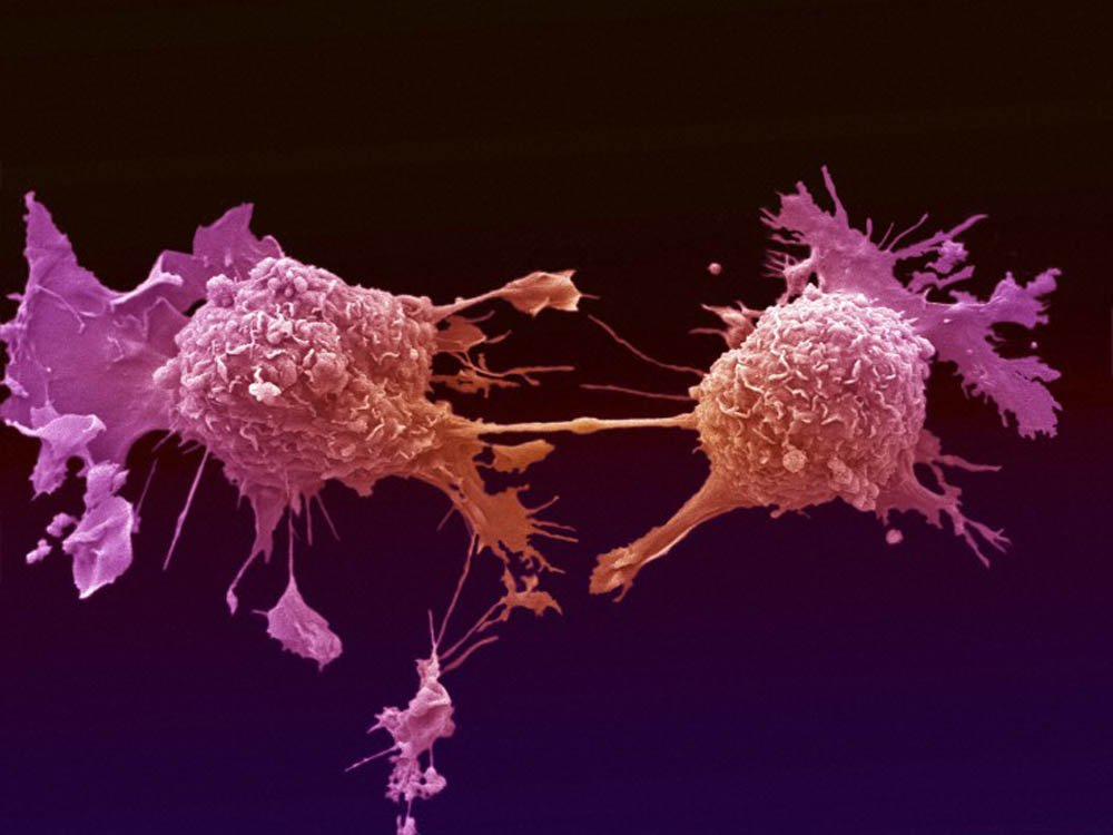 cancer cells cause mayhem in your genetic code lung cancer