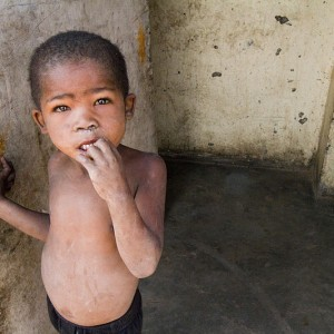 Little-Boy-Poverty-In-Africa-Photo-by-Herman-Pieters-300x300