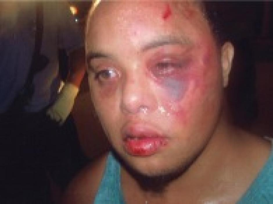 Excessive Force: Cops Beat Man with Down Syndrome | The Daily Sheeple
