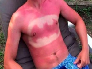 "Sunburn Art: ""Cool"" New Trend of Burning Outlines into Your Skin Raises Chances of Cancer 50%"