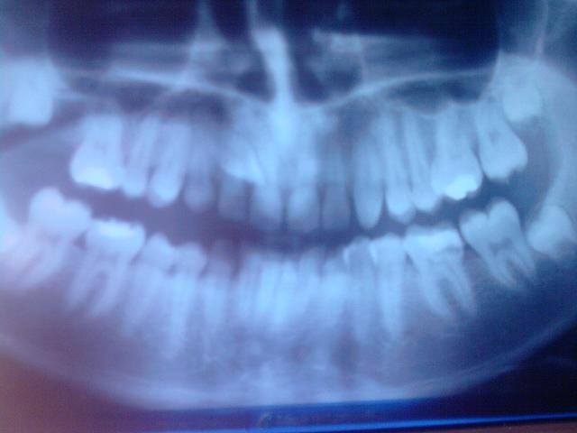 xray of front teeth - photo #4