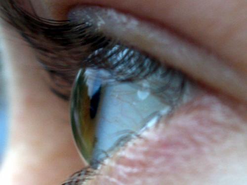 eyeball iris wikimedia