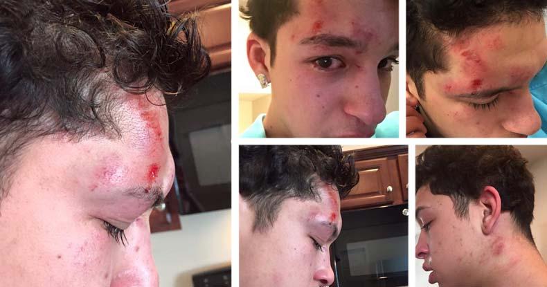 TEEN-Beaten-by-school-cop