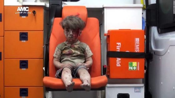 Syria Omran little boy
