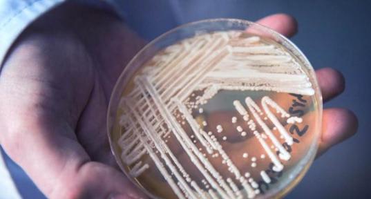 CDC warns against spread of 'super fungus'   Alternative